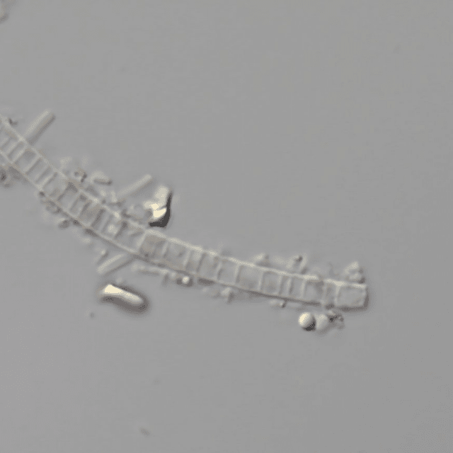 C33 Microbe in view under Microscope