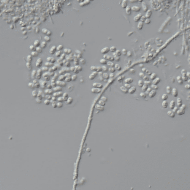 C44 Microbe under Microscope