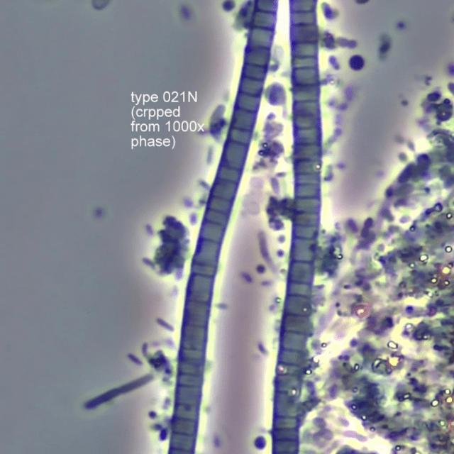 Type021n microbe